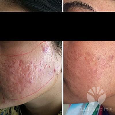 Scars and Skin Resurfacing