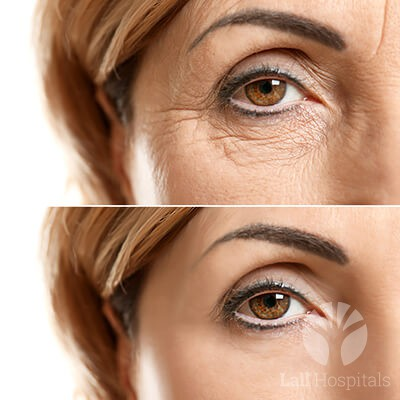 lall-skinscience-p-eye-rejuvenation
