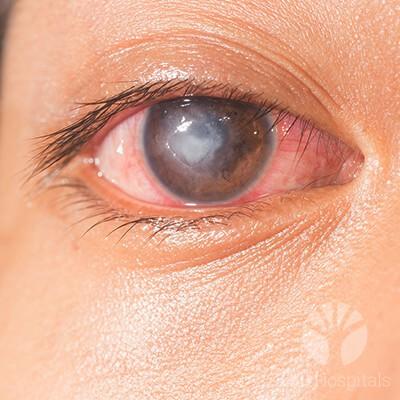 lall-eyecare-p-corneal-diseases