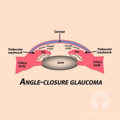 lall-eyecare-p-glaucoma-closed-angle-glaucoma