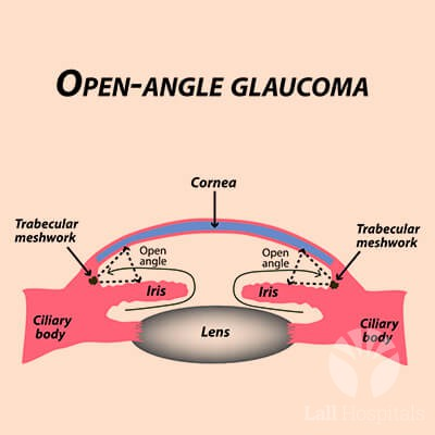 lall-eyecare-p-glaucoma-openangle-glaucoma-common