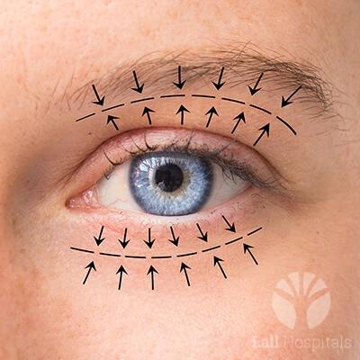 lall-eyecare-p-oculoplasty-1